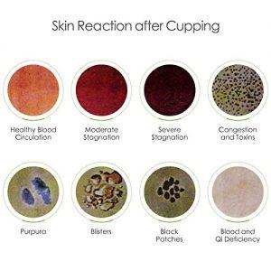 ventouses ,couleurs,peau,massage,traitement